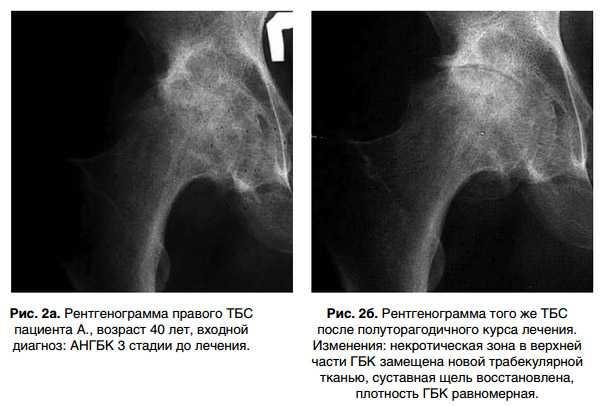 Рентгенограмма до и после лечения АНГБК