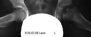 Изображение - Рентгенография тазобедренных суставов по лаунштейну 260308-laun-300x123
