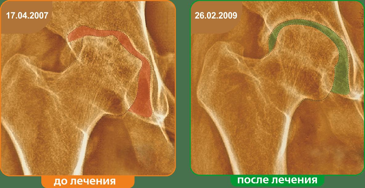 Результаты до и после лечения
