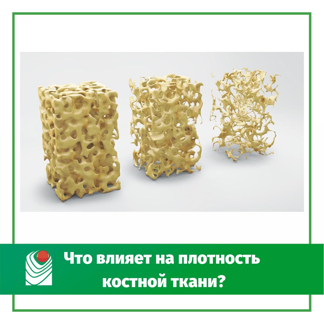 -влияет-на-плотность-костной-ткани_.png