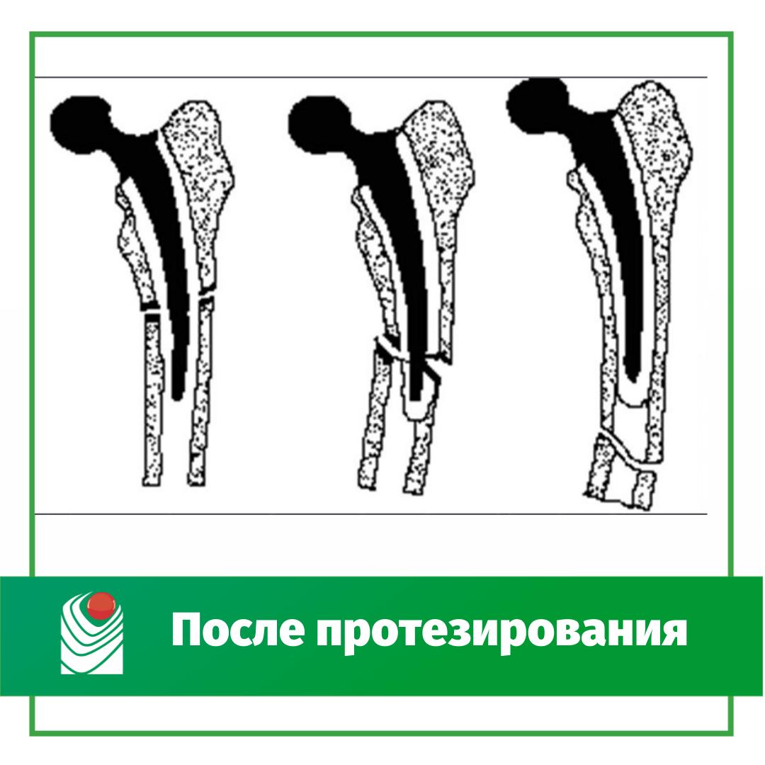 -протезирования.png